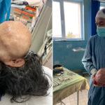 Dr. Singh scapă o femeie de o tumoră gigant!